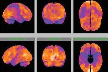 Trojrozměrné obrazy mozku při SPECT vyšetření, zdroj: AD Centrum